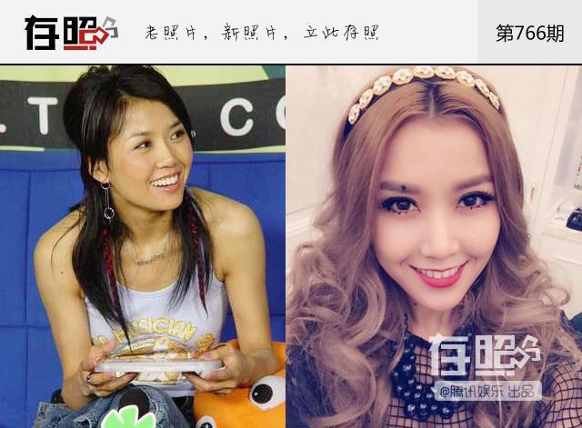 揭秘娱乐圈整容明星:王蓉承认削骨隆鼻