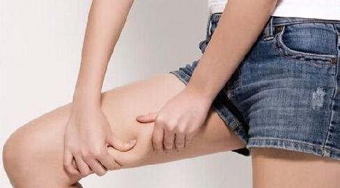大腿减肥方法有什么小妙招