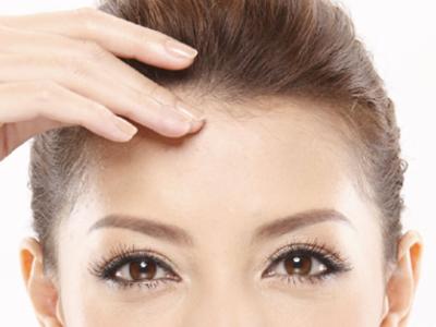 单眼皮如何自然变双眼皮