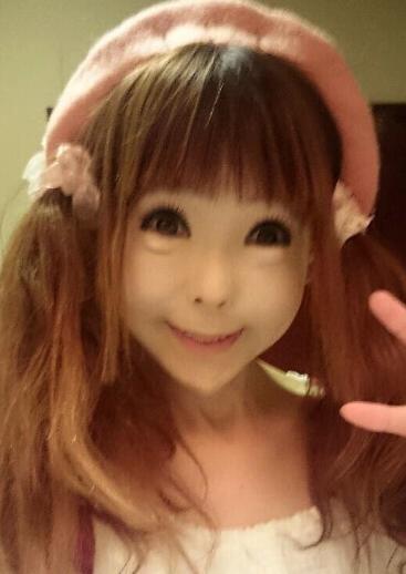 日本少女尖下巴夸张 卧蚕浮肿似整容失败