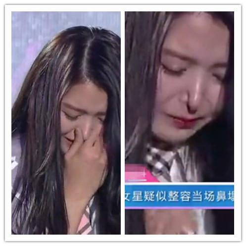 韩国女星任娜英鼻子坍塌