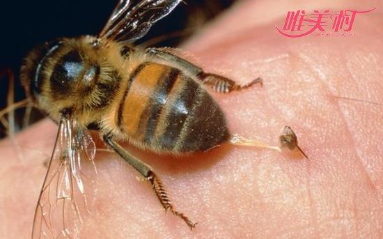 被蜜蜂蛰了最好的处理方法是什么