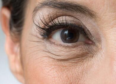 如何快速去除你的眼角皱纹 快学起来吧