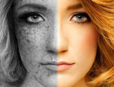 晒黑的皮肤怎么样才可以恢复变白 快学起来吧