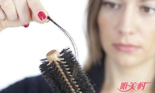 怎么防止脱发