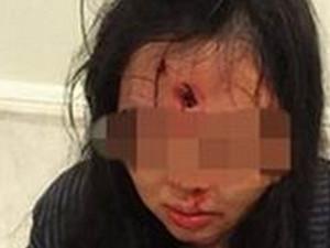 中国游客在南非旅游 一家三口竟遭到枪击