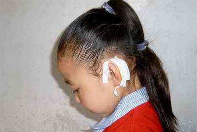 小学生遭撕裂耳朵