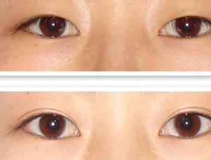女子赴青岛割双眼皮被切上睑 发现责任医师