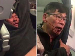 美联航与被打乘客和解 出新政策自愿让位者可获1万美元