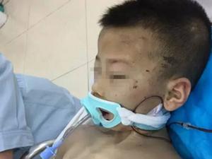 6岁男童被继母疯狂虐待 在重症监护室昏迷长达80天