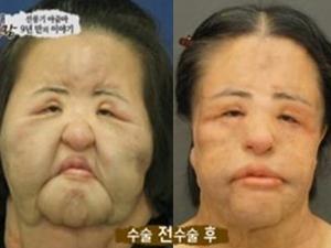 韩国风扇大妈疯狂整容 恶性后果让所有人震惊