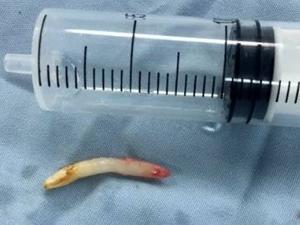 男孩鼻孔里长一颗牙 罕见症状令医生讶异背后原因被查明