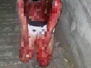 少女遭霸凌全身鲜血跪地 俨如血人触目惊心