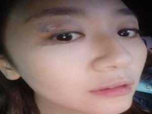 台湾女星在家头被砸伤 竟然先自拍发社交网站求关注