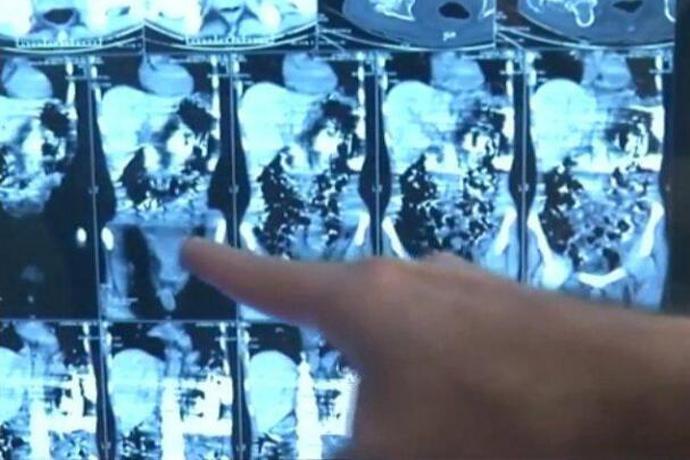 男子胃镜检测