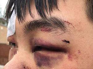 在澳留学生被围殴数次 事件经过曝光中国留