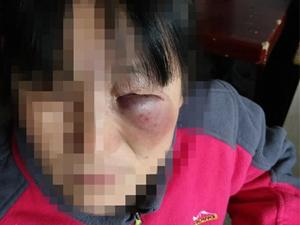 女主人回家遇小偷 脸部被其严重暴打小偷行