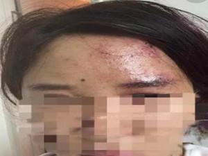 网购玻尿酸闺蜜二人互扎 误扎血管险些导致失明