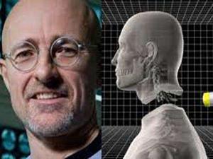 头颅移植手术成功 手术地点在中国历时18个