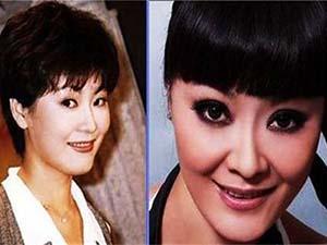 王小骞整容前后照片 整个脸型都有不小的变
