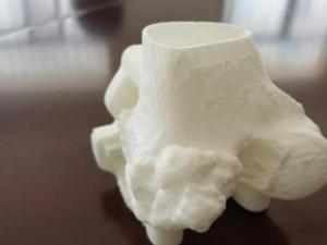 医生3D打印修膝关节 3D打印可以置换人体器
