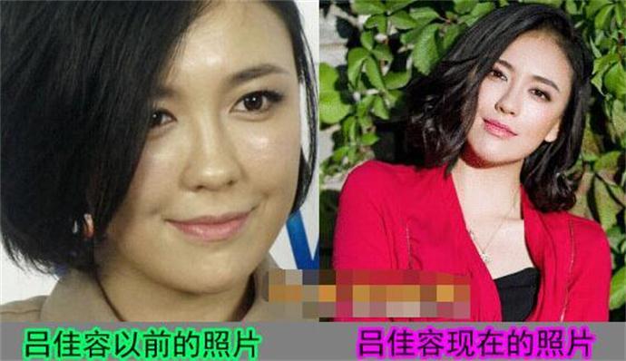 吕佳容整容前后照片对比 无视假脸传闻穿真空透视装大秀爆乳