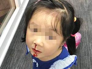 飞机三度未能起飞 小女孩现场流鼻血引人心疼