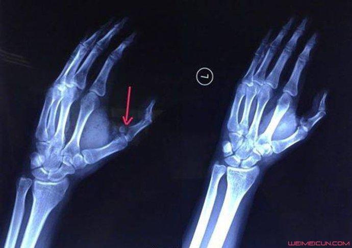 手指被可乐炸骨折