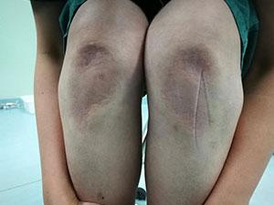 护士腿部跪出青紫 揭背后原因及经过护士感人一幕曝光