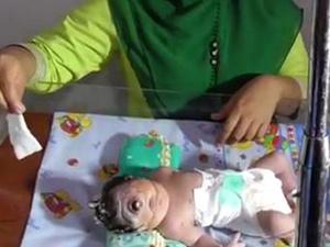 女子生无鼻独眼婴 背后原因揭秘出生七小时后不幸离世
