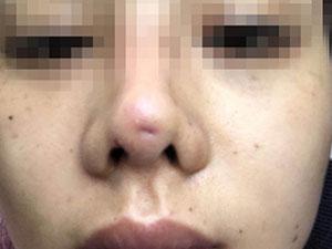 90后姑娘成猪鼻子 姑娘隆鼻失败曝背后隐情令人吃惊