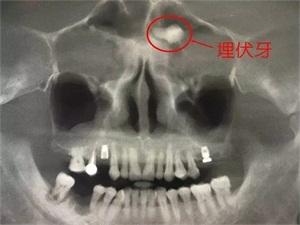 男子额头长一颗牙 这竟是他得怪病的原因难以置信