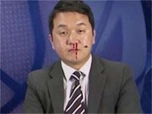 韩国解说员镜头前流鼻血 搭档看到其流鼻血后表情亮了