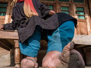 女孩双脚肿如大象腿怎么回事 背后原因是患上这个病引人惊