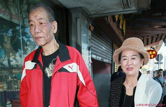 李兆基患肝癌