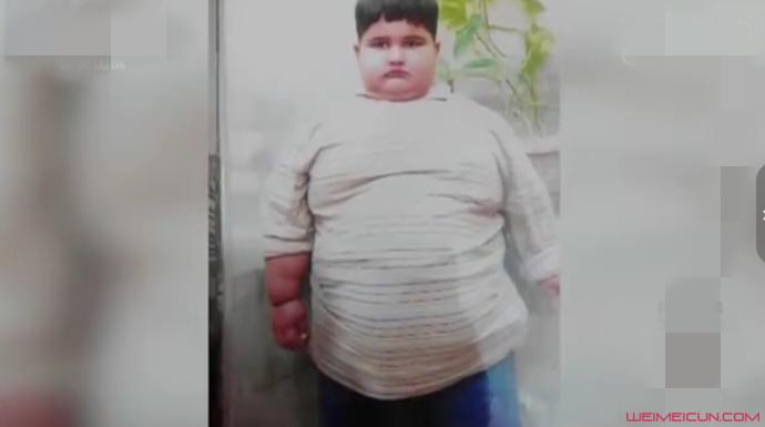 10岁男孩197公斤