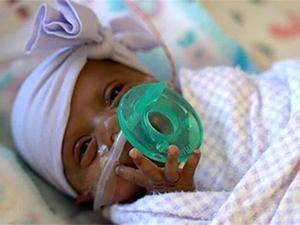 最小存活婴儿出院具体啥情况 最小存活婴儿Saybie出院始末