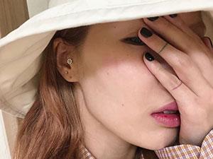 韩女星泫雅摔倒什么情况 脸上颧骨摔伤险毁