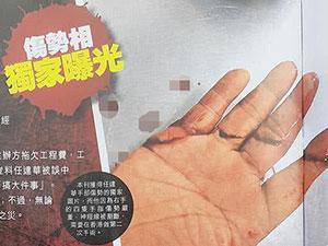 任达华右手伤口曝光 受伤手指血迹斑斑令人