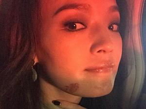 舒淇撞伤脸颊发肿 舒淇是怎么撞伤的详情起底