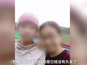 13岁少女头发脱光是怎么回事 原因详情曝光引发关注