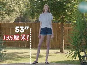 女生腿长135厘米 16岁身高2.06米疯长原因令人意外