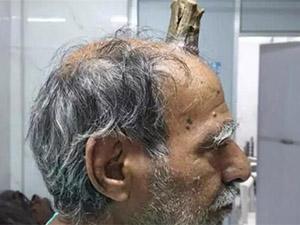 头部受伤后长出牛角 原因始末及后续曝光简