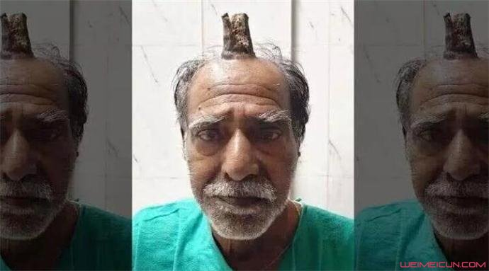 头部受伤后长出牛角
