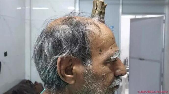 头部受伤后长出牛角怎么回事