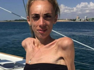 23岁姑娘25公斤 克服病症后的她逆袭成为一