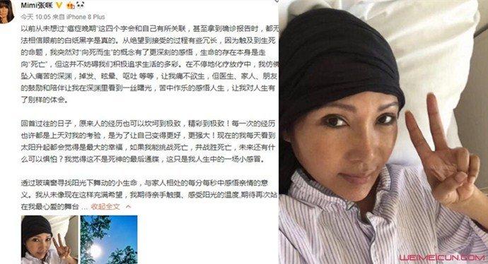 张咪被确诊癌症晚期
