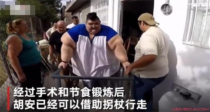最胖的人减660斤