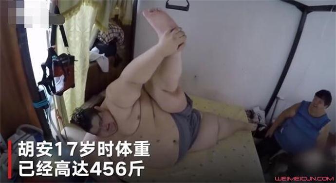 最胖的人减660斤怎么回事