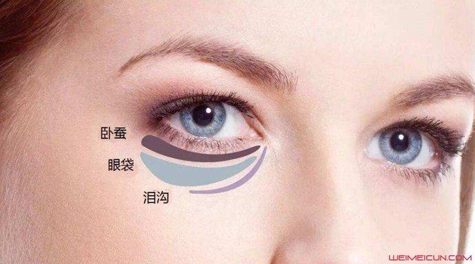 怎样去除眼袋最有效的方法是什么 几个实用小妙招推荐 isanji.com